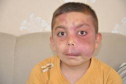 Damar tümörüne yakalanan çocuğun yardım feryadı