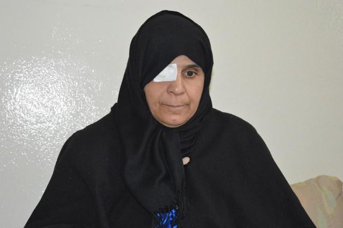 Suriyeli kadın ikinci gözünü de kaybetmek istemiyor