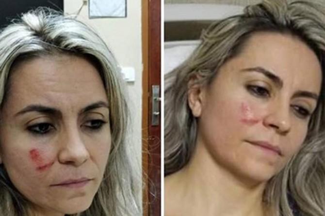 Şanlıurfa'da doktorun hasta tarafından darp edildiği iddia edildi