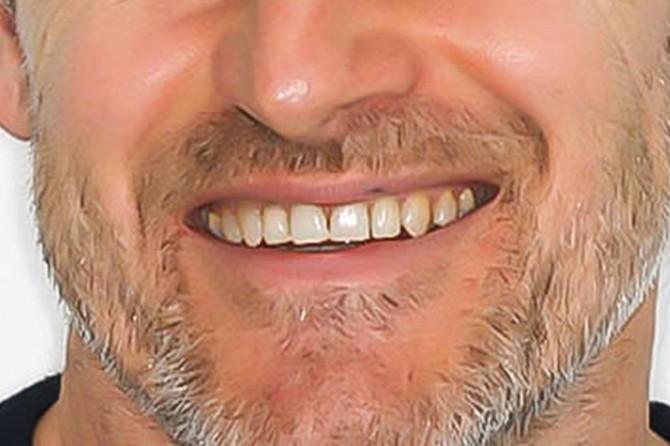 Eksik diş kilo almaya neden olabiliyor