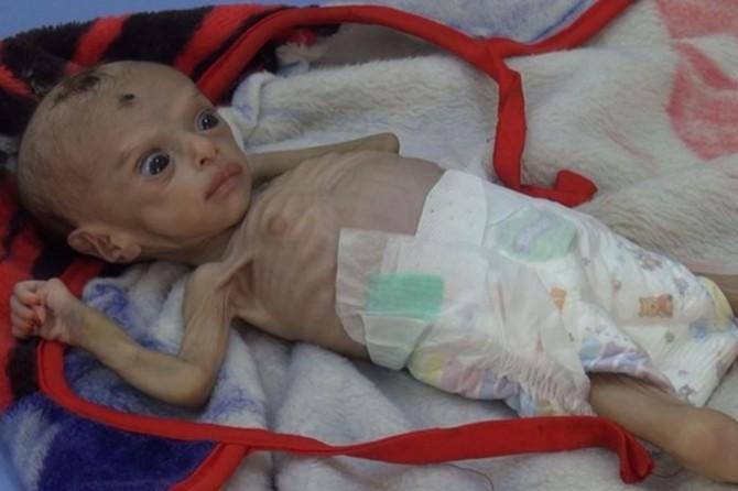 Li Yemenê serê 2 seatan carekê dayikek û 6 bebek dimirin