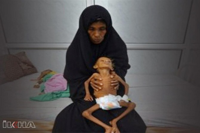 No mother in the world have to sleep her hungry child