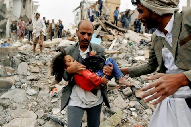 BM: Fransa, İngiltere ve ABD, Yemen'deki savaş suçlarının muhtemel suç ortakları