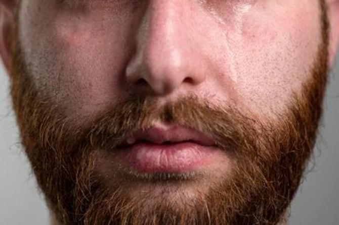 """""""Asimetrik ağlayan yüz"""" sendromu psikolojiyi olumsuz etkiliyor"""