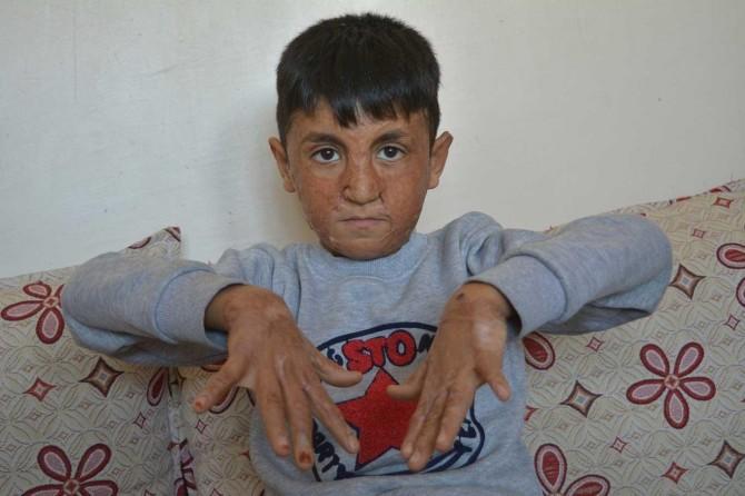 Yüzü ve elleri yanan küçük çocuk yardım bekliyor