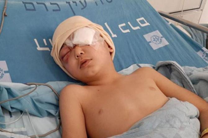8 yaşındaki Filistinli çocuk, siyonist teröristlerin açtığı ateş sonucu gözünü kaybetti