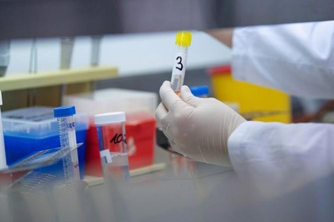 Azerbaycan'da Coronavirus vaka sayısı 76'ya yükseldi