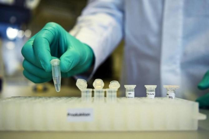 Almanya'da Coronavirusten ölenlerin sayısı artıyor
