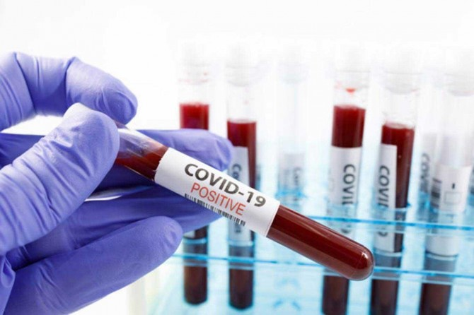 The number of confirmed coronavirus cases rises to 91