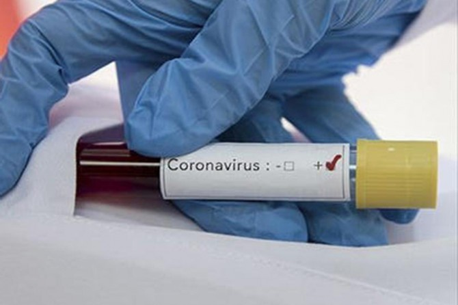 1339 people die from coronavirus in a single day in the US