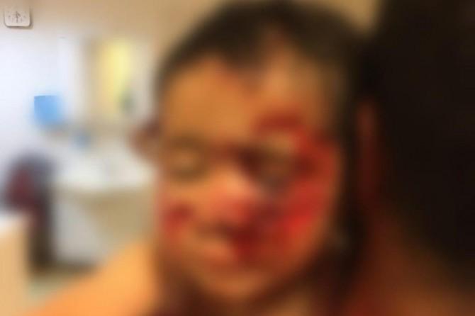 Viranşehir'de köpeklerin saldırısında ağır yaralanan çocuk hayatını kaybetti