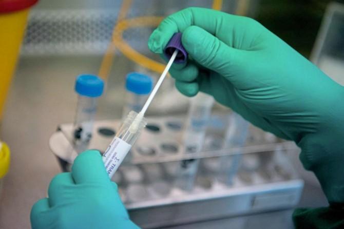 Li tevahîya cîhanê hejmara kesên ku ji ber Coronavîrusê mirin derket li ser 340 hezarî