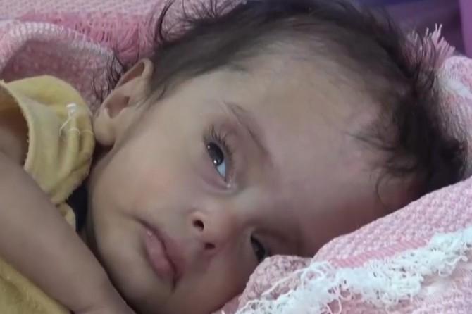 Yemen'deki savaştan en çok çocuklar etkileniyor