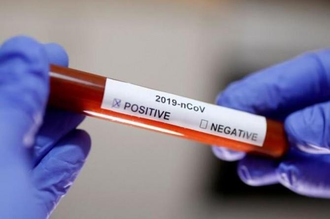 Belarus'ta Coronavirus vaka sayısı 64 bin 932'ye yükseldi