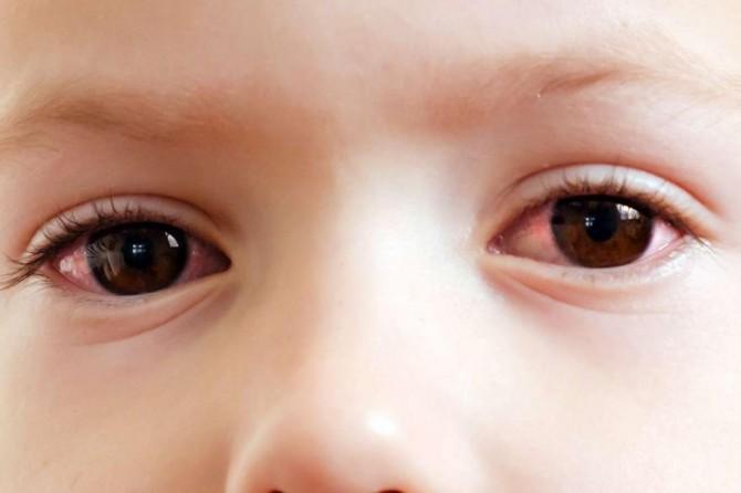 Çocukların göz sağlığını bozan 5 yaz tehlikesi!