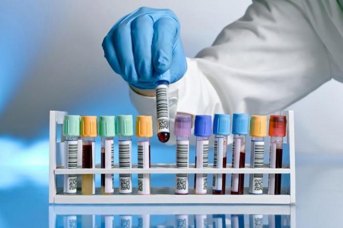 Rusya'da son 24 saatte 5 bin 65 yeni Coronavirus vakası