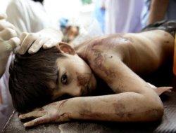 Bahreynde çocuklara yapılan işkence, kınandı