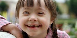 Down Sendromuna müdahalede 1 yaş çok geç