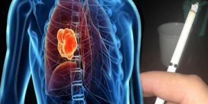Akciğer kanserinin en önemli risk faktörü sigara