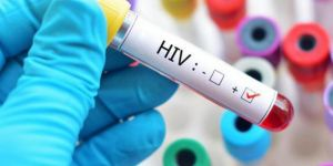 HIV positive kills 20,000 people in Russia