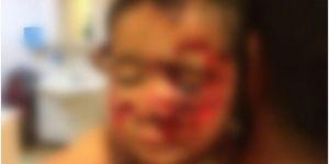 Viranşehir'de başıboş sokak köpekleri 6 çocuğu feci şekilde yaraladı