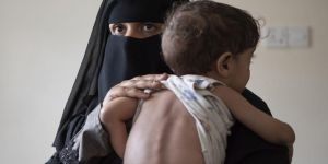WHO: Coronavirus Yemen nüfusunun yarısını etkisi altına alabilir