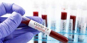 İletişim Başkanlığı, dünya genelindeki Coronavirus vaka durumunu açıkladı