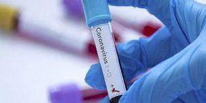 Almanya'da bir fabrikada 1029 işçide Coronavirus tespit edildi